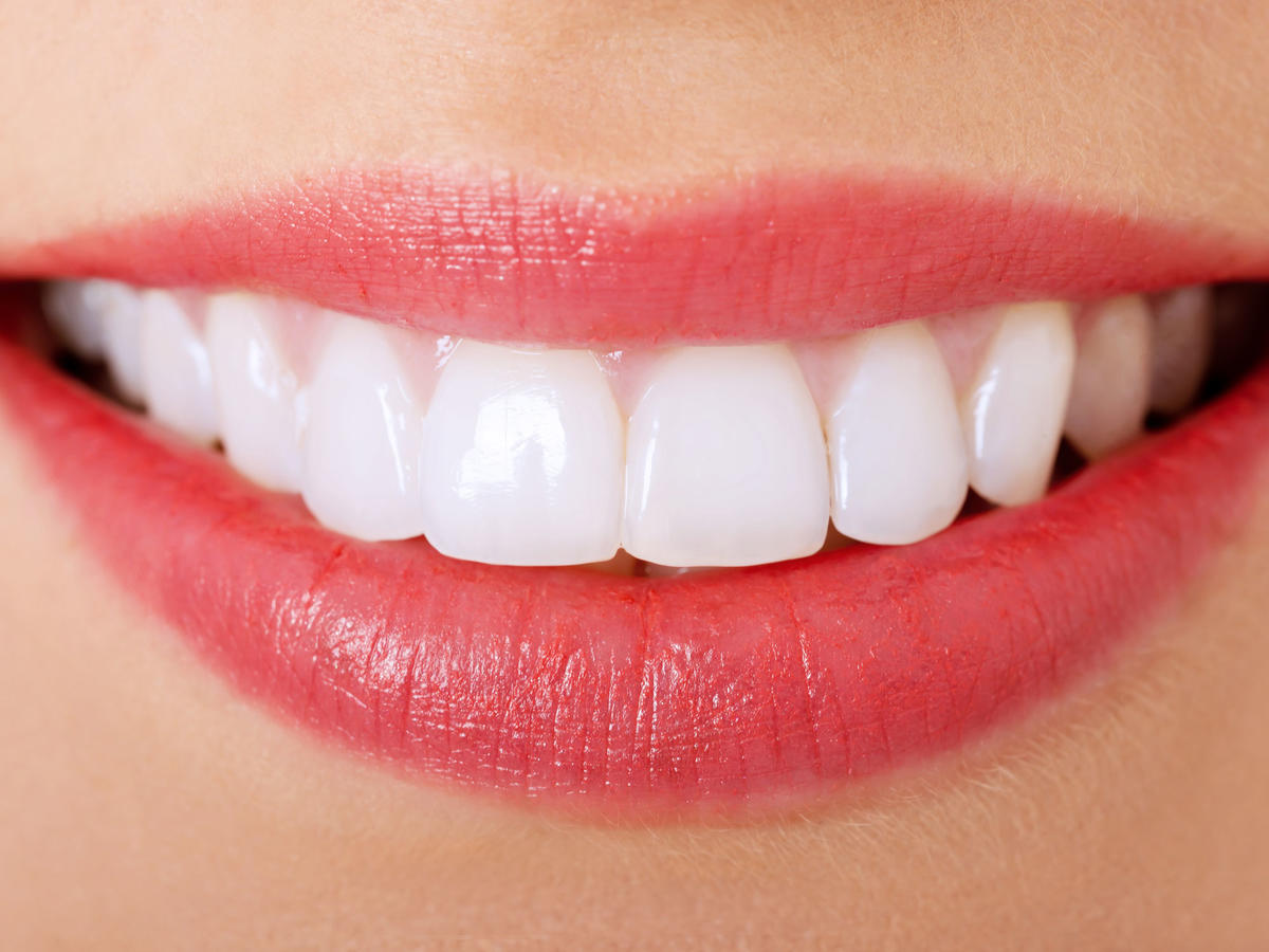 The Best and Worst Foods for Your Teeth
