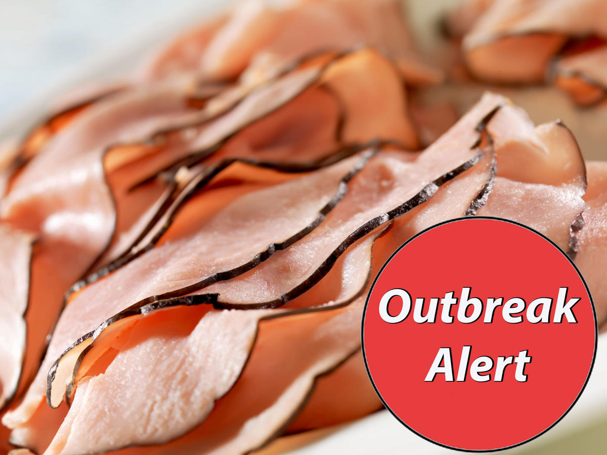 Unknown Deli Meat, Cheese Linked to Listeria Contamination in Four States