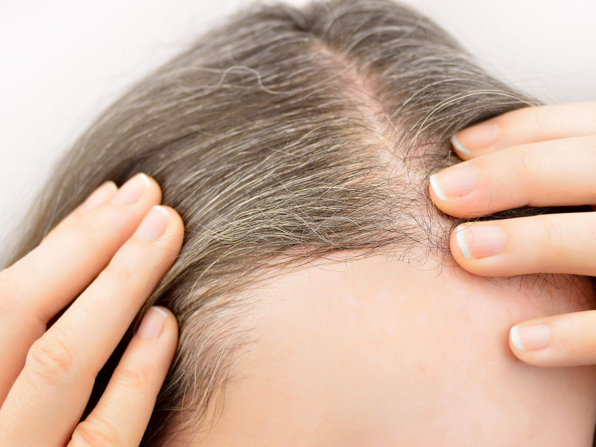 5 Foods That Can Actually Help Prevent Gray Hair