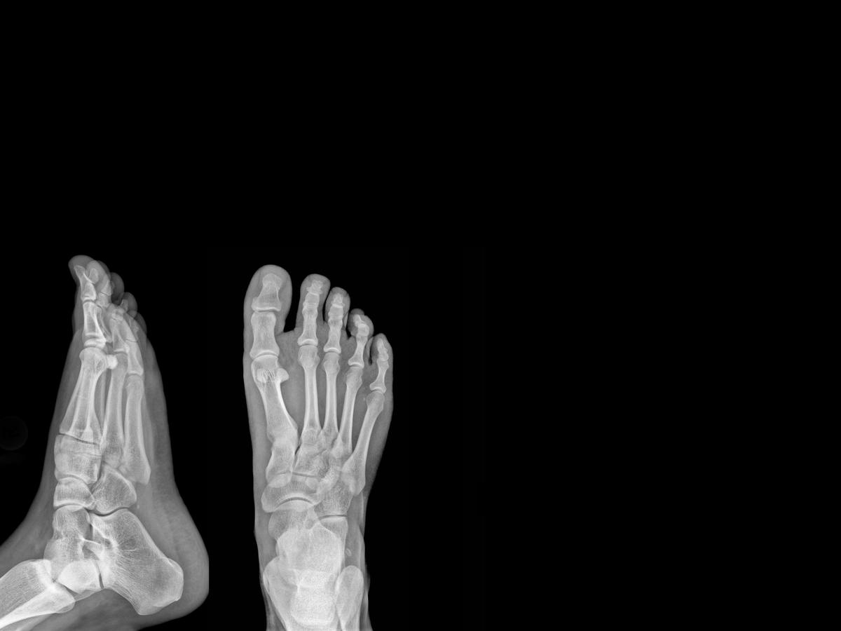 X-ray of the bones of the feet