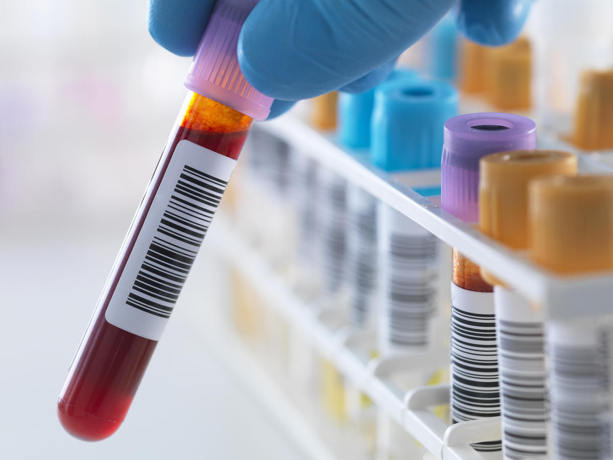 There are blood tests for celiac disease