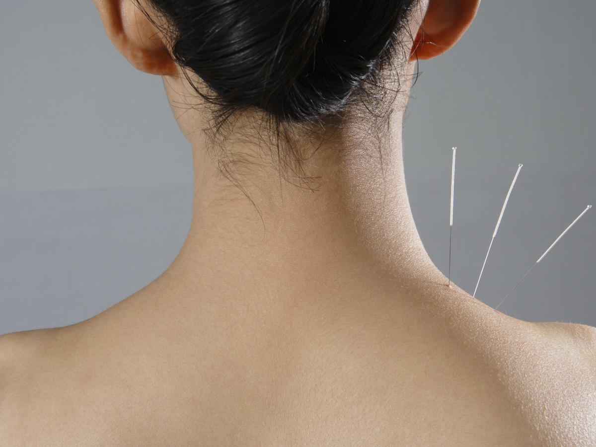 17-accupuncture-needle