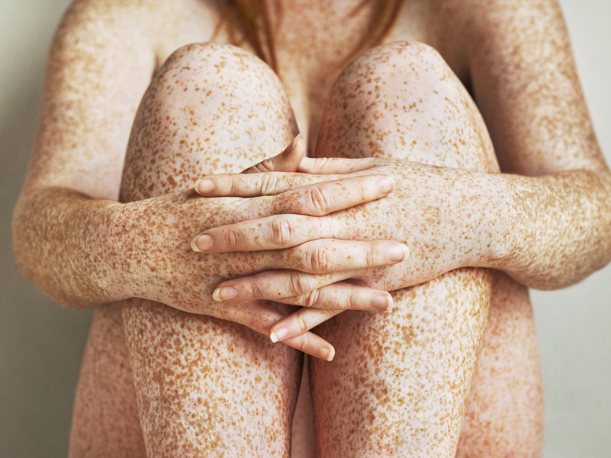 Freckled girls hands, arms and legs, close up TIME health stock
